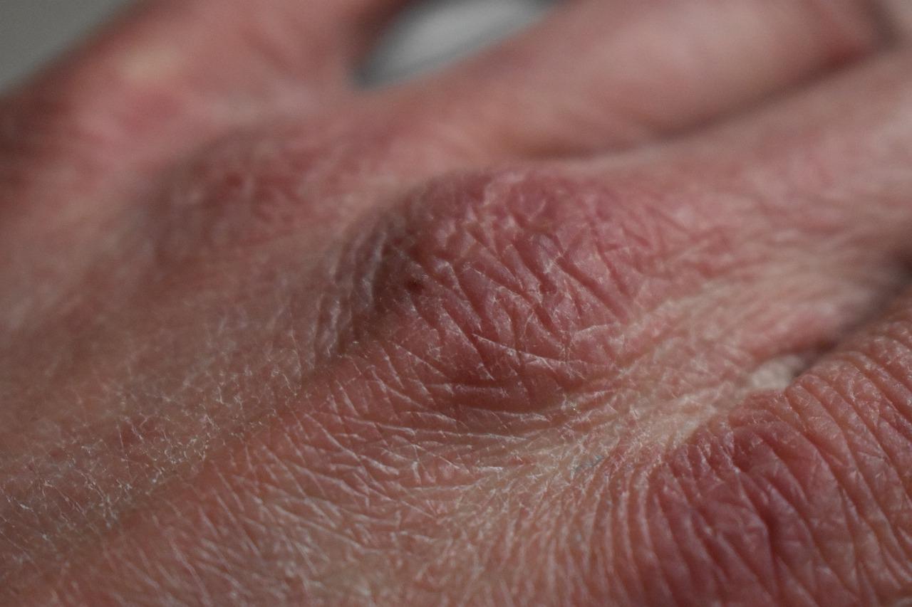 Twoja skóra jest sucha i mocno zniszczona?